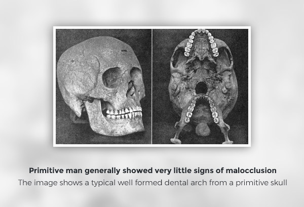 Malocclusion Causes